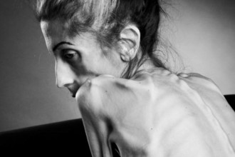 Anorexia-Rachael-Farrokh